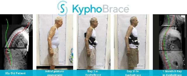 Kyphobrace
